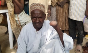 Ali Falfami, 73, had his hand removed after being shot by Boko Haram fighters
