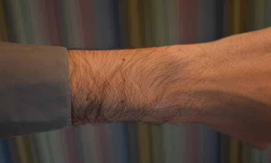My wrist without an Apple Watch.