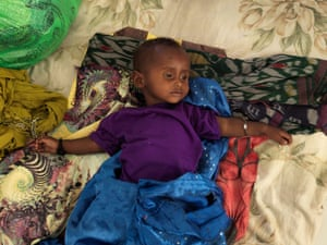 A child suffering from malnutrition