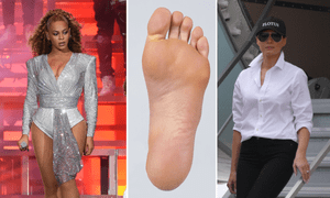 2018's weirdest mysteries include Beyonce, feet, and #MissingMelania.