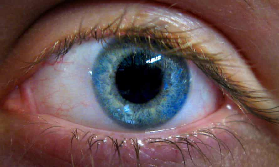 Close-up picture of an eye
