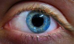 A human eye.