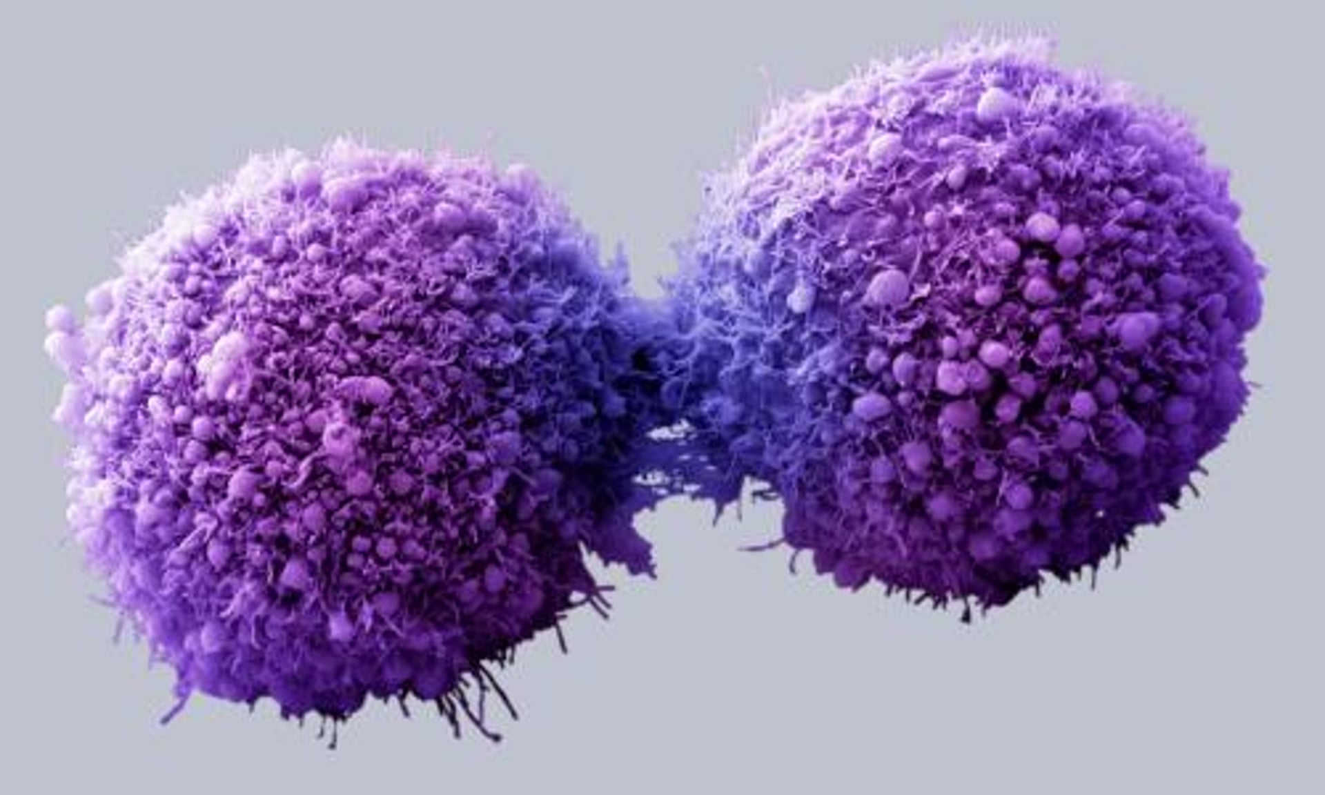 Image result for Pancreatic Cancer