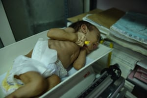Baby Radwa, a victim of the conflict in Yemen