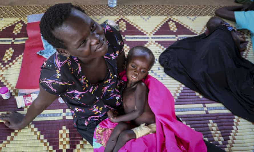 Kombangako Mawa, 19 months old, who has been in hospital for edema due to malnutrition, sits on her mother's lap at a feeding center.