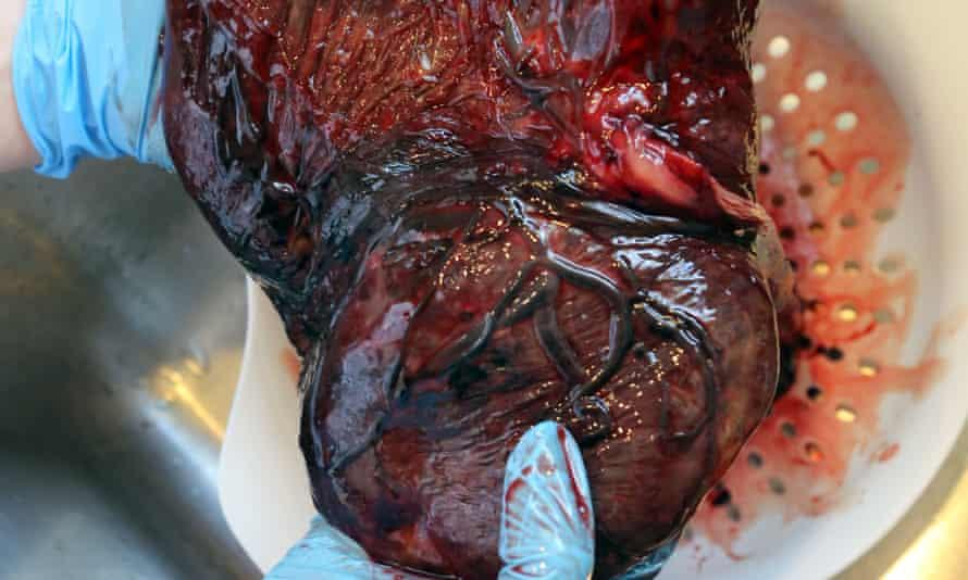 Natural human placenta.
