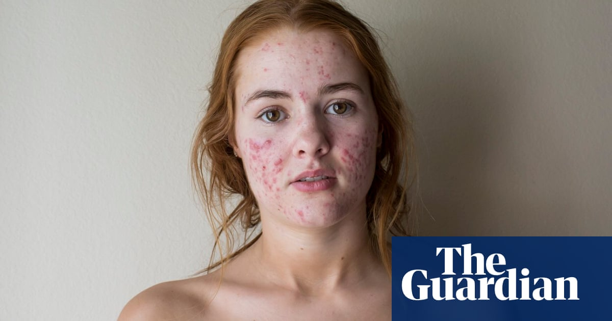 Pimples Are In The Rise Of The Acne Positivity Movement Fashion The Guardian