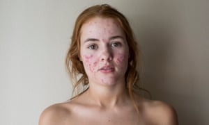 Kali Kushner without makeup: 'There hasn't been as much backlash as you would think.'