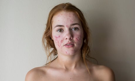 'Pimples are in' – the rise of the acne positivity movement