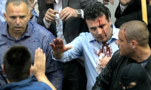 Zoran Zaev, then opposition leader, bloodied during violence in Macedonia's parliament in April.