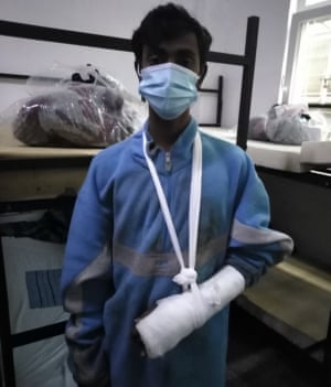 A man shows his injured arm as part of evidence alleging assaults on migrants from the Croatian police.