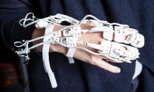 A robotic skeleton in the medical robotic department at Bristol Robotic Laboratory