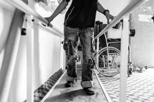 Sidi suffers from a degenerative disease that has weakened his legs.