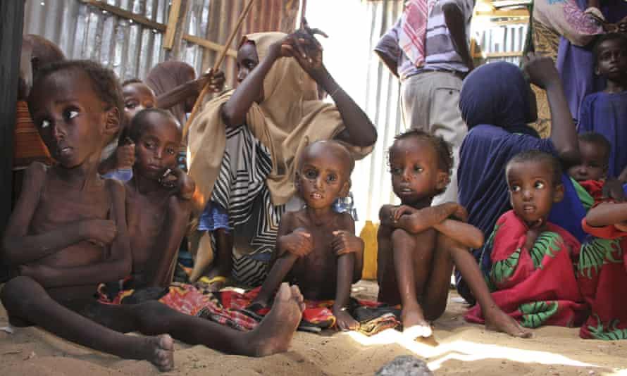 Malnourished Somali children