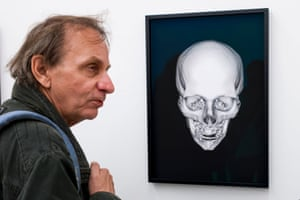 French author Michel Houellebecq ponders his X-rayed skull at Manifesta 11 in Zurich.