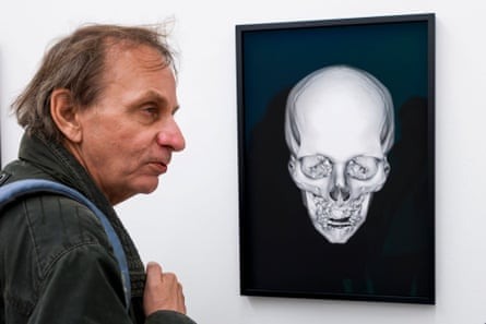 French author Michel Houellebecq ponders his X-rayed skull at Manifesta 11 in Zurich.