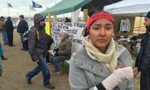 Lauren Howland, with broken wrist suffered at the pipeline protest.