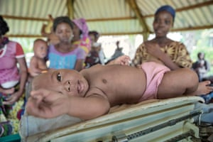 Baby being weighed in Benin