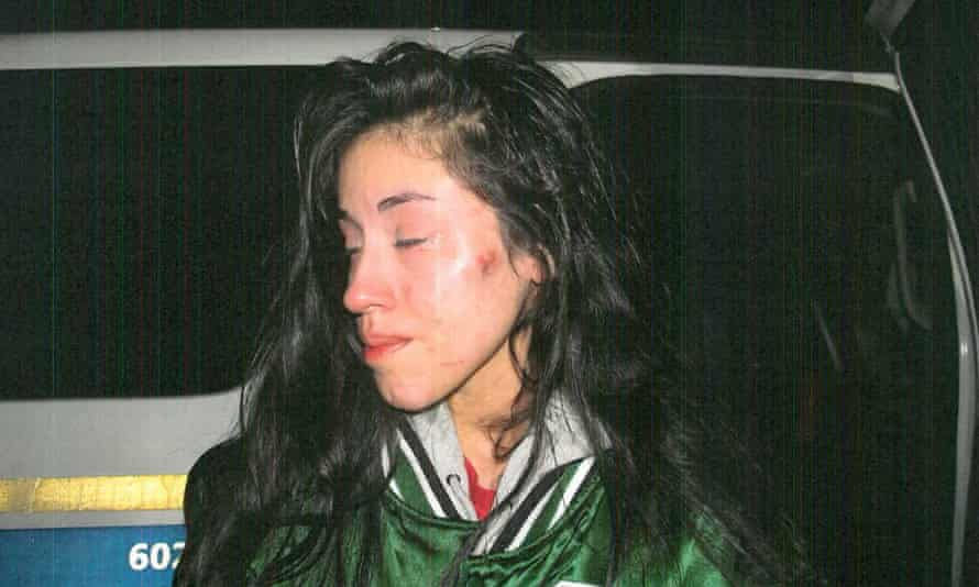 Valenzuela sustained injuries after Phoenix police pulled her over on 17 January.