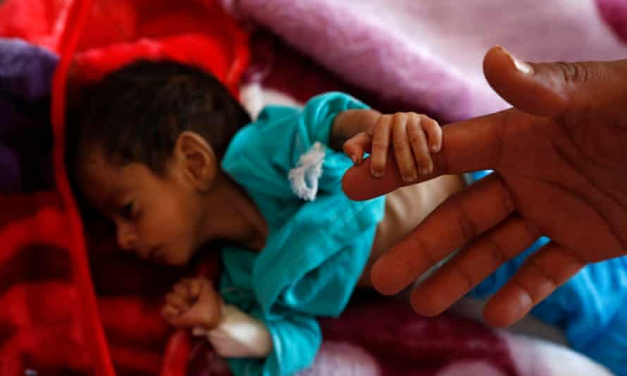 A malnourished child holds his father's finger as he receives treatment at a hospital in Sana'a, Yemen.