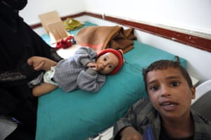 Yemeni children suffering from malnutrition wait for treatment at a medical center in Bani Hawat, on the outskirts of the Yemeni capital, Sana'a, on 9 January.