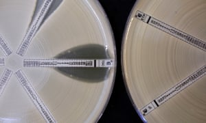 Antibiotic-resistant bacteria with a mutation called NDM 1 is seen on two plates at the Health Protection Agency in London