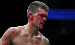Stephen Thompson: bloodied.