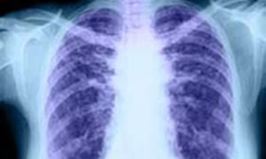 An X-ray of healthy lungs