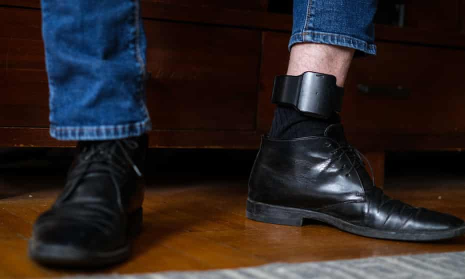 Steven Donziger's monitoring bracelet, placed on his ankle.