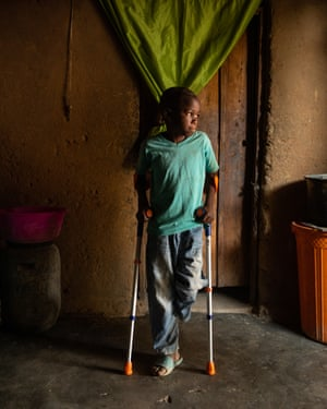 Manuel Rodriguez, 10, lost one of his legs and almost his life when one of his cousins accidentally picked up some live ordnance.