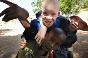 Albino children at the Mitindo boarding school, in Misungui in northern Tanzania, 2009