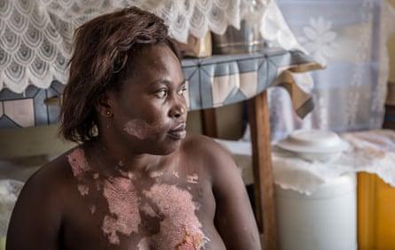 Alanyo Joyce shows where she was burnt