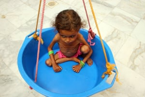 A girl suffering from malnutrition is weighed at a clinic in Yemen's northern Hajjah province.