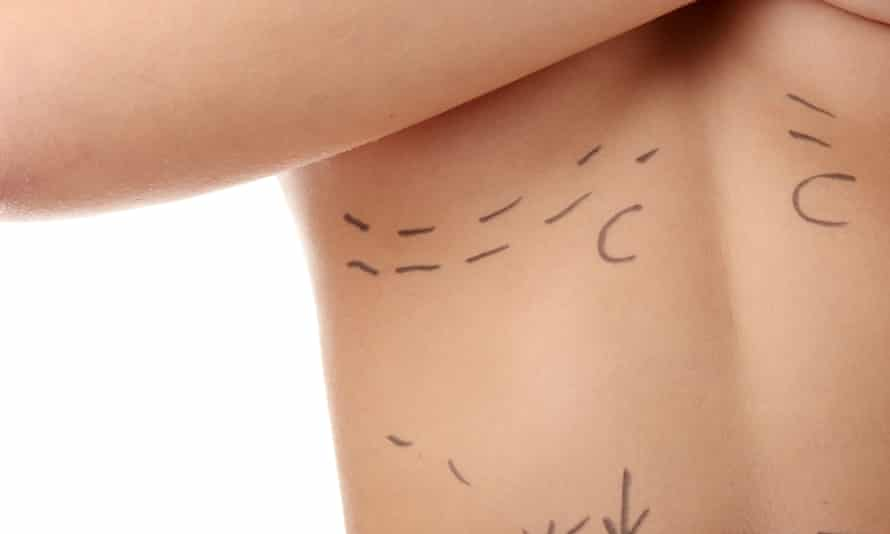 Woman's body prepared for cosmetic surgery