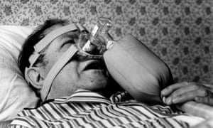 Patient Michael English trying out some then revolutionary snoring equipment in 1986.