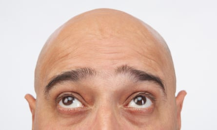 Canadian researchers found people could identify narcissists by their eyebrows.