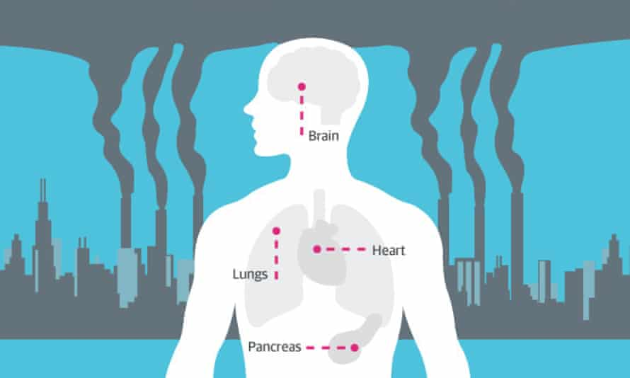 The health impacts of air pollution