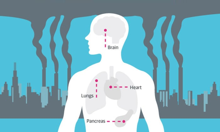 How air pollution affects your health - infographic | Guardian