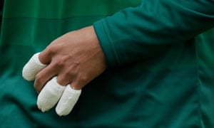The bandaged fingers of Pakistan's Shoaib Malik during the match against India at Old Trafford.
