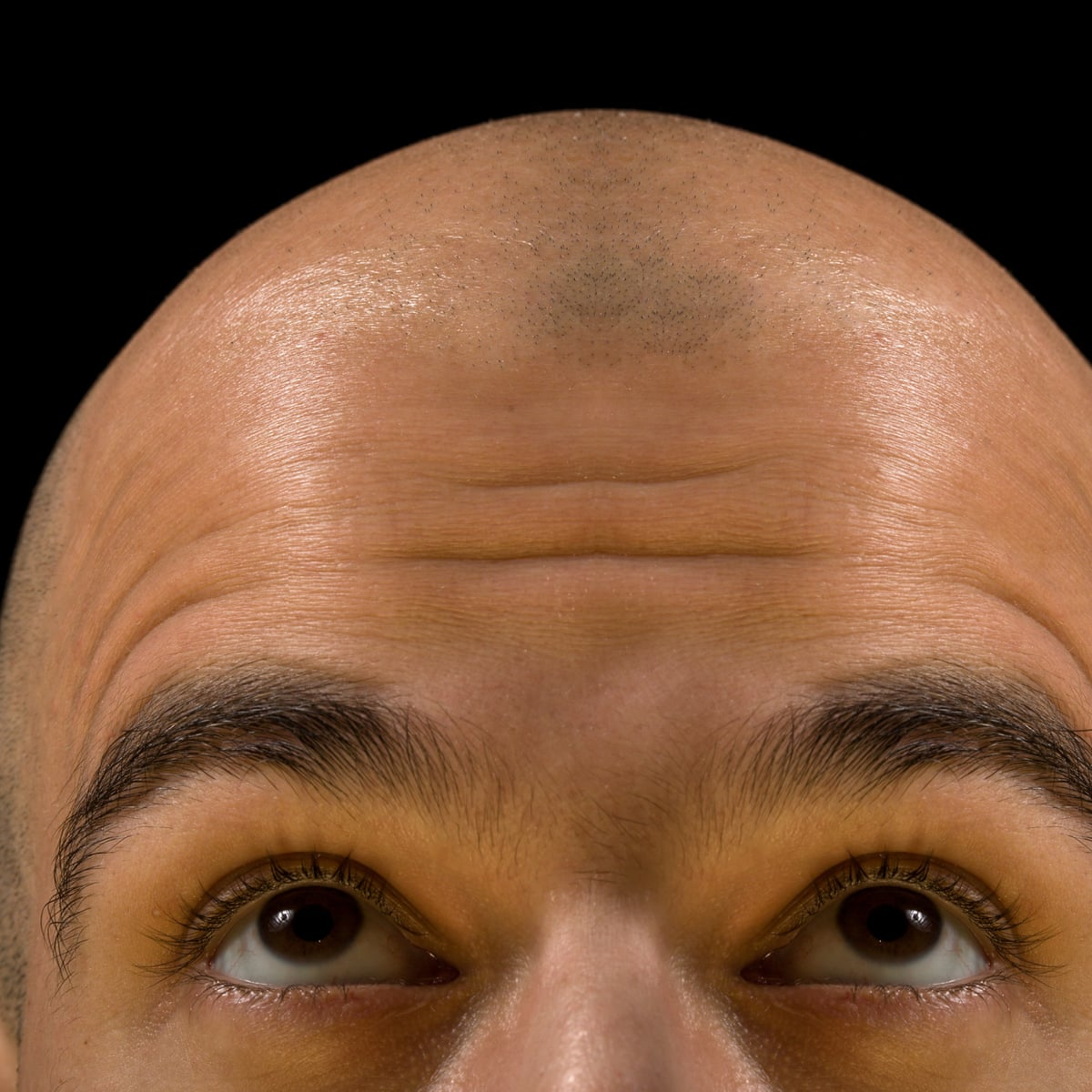 Stop balding to ways Can You