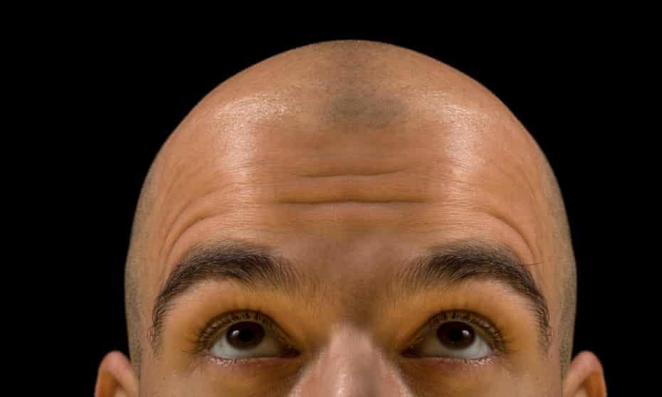 A bald man looking up at his scalp