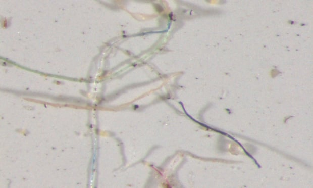 Rainwater samples collected across Colorado and analyzed under a microscope contained a rainbow of plastic fibers.