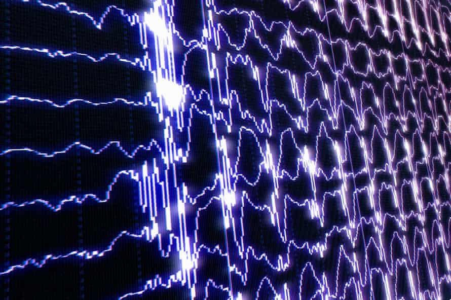 brain waves in rem sleep