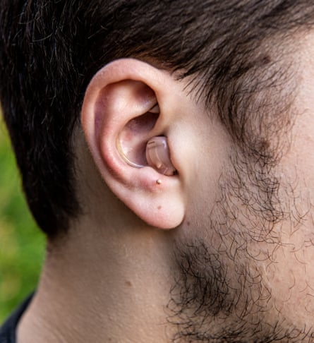 A closeup of Serge Faguet's $6,000 hearing aid to optimise his already perfect hearing