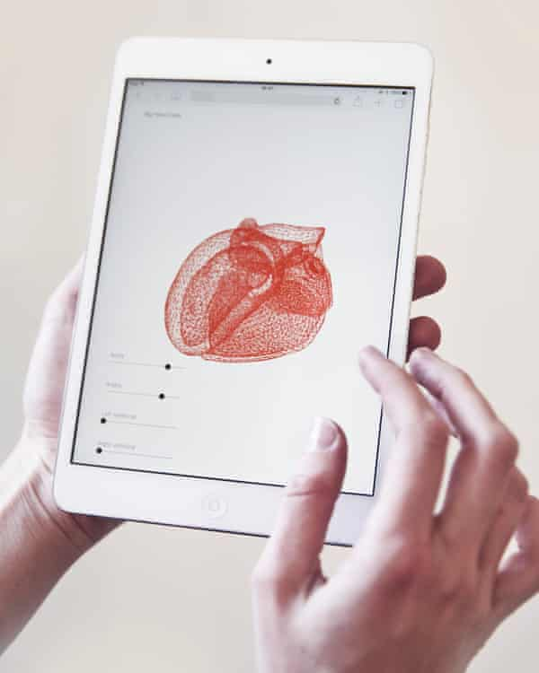 Big Heart Data, 2018, by Salomé Bazin, produces digital and 3D-printed models of the heart to assist surgeons.
