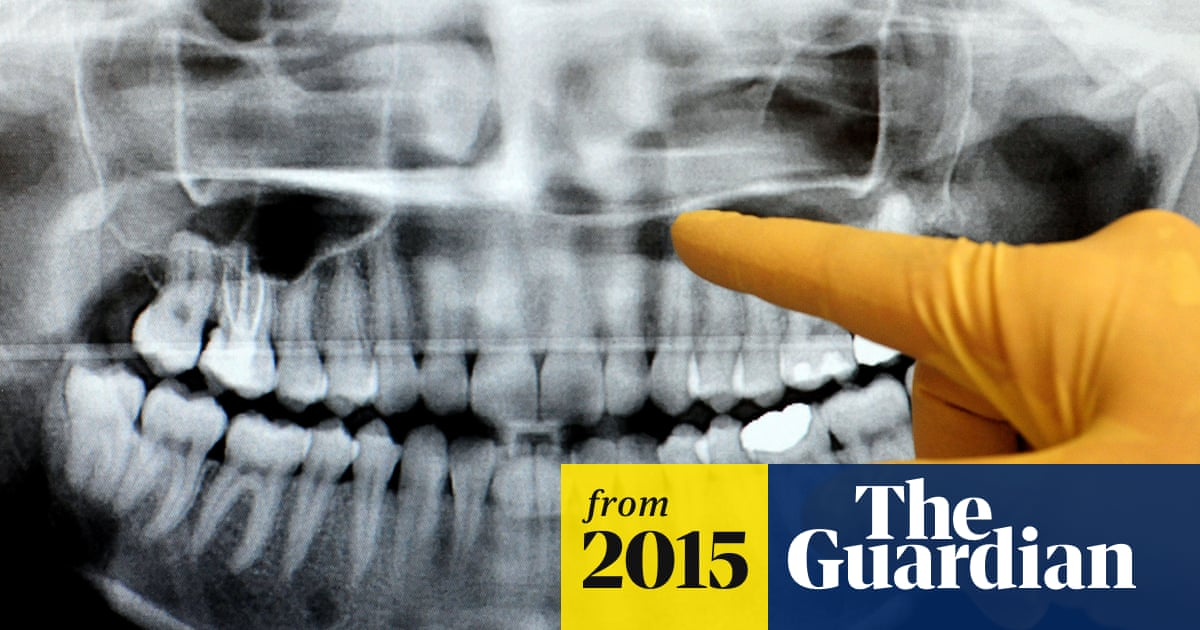 British teeth are no worse than US smiles, say researchers