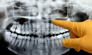 A dentist checks an x-ray of a patient's teeth