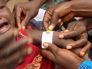 A baby in Nigeria is assessed for malnutrition