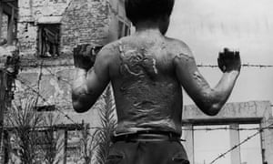 Kiyoshi Yoshikawa, a survivor of the atomic bombing of Hiroshima in 1945, displays the heavy scarring on his back, soon after leaving hospital on 13 August 1951.