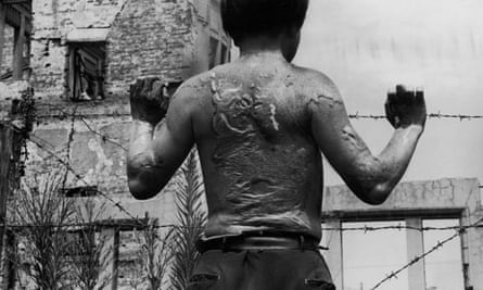 Kiyoshi Yoshikawa, a survivor of the atomic bombing of Hiroshima in 1945, displays the heavy scarring on his back, soon after leaving hospital, on 13 August 1951.